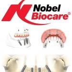 Giá Implant Nobel Biocare