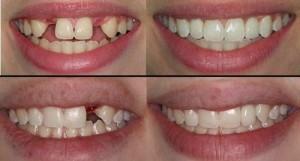 Implant sau khi nhổ răng