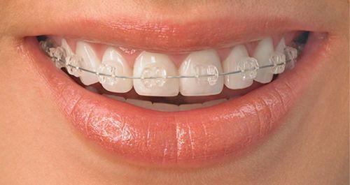 Niềng răng mắc cài sứ dây trong 3
