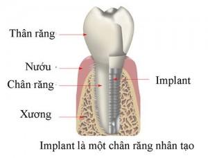 Ưu điểm vượt trội của cấy ghép răng Implant