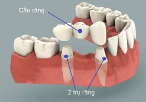 Cầu răng có phải là phương pháp trồng răng vĩnh viễn không?