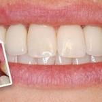 Nhổ răng đồng thời cấy ghép Implant