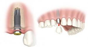 Tiêu chí đánh giá Implant tốt hay không?