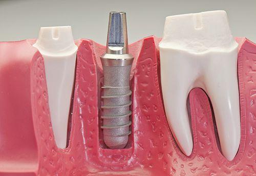 Cấy ghép implant có hại gì không? 1