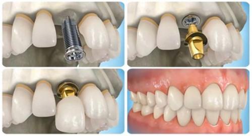 Trồng răng hàm giả bằng cấy răng implant 2