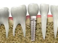 Trồng răng hàm giả bằng cấy răng implant