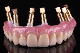 Trồng răng hàm giả bằng cấy răng implant 4