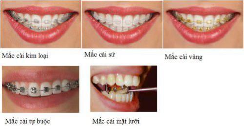 Niềng răng mắc cài sứ thẩm mỹ hiệu quả