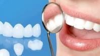 Phương pháp phục hình cầu răng