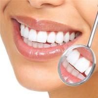 Răng sứ veneer như thế nào ?