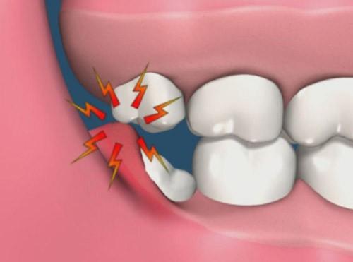 Nguyên nhân dẫn đến nhổ răng khôn 2