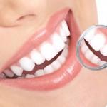 Mặt dán Veneer sứ thẩm mỹ bảo tồn răng thật