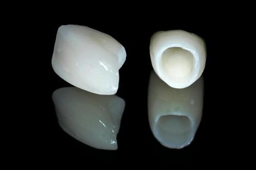 Bọc răng sứ cho răng cửa 1