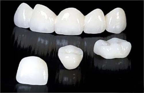 Thay đổi răng xấu nhờ công nghệ làm răng sứ mới