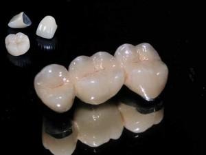 Phục hình thẩm mỹ bằng răng sứ