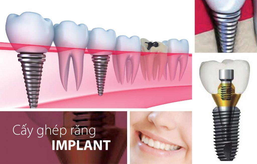 Quy trình cấy ghép implant 1