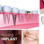 Trồng răng implant giá bao nhiêu ?