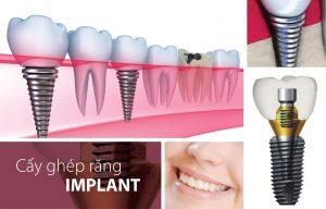Các bước cấy ghép implant