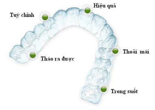 Niềng răng cửa giá bao nhiêu? 2