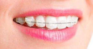"""Niềng răng """"miệng tươi như hoa nở"""""""