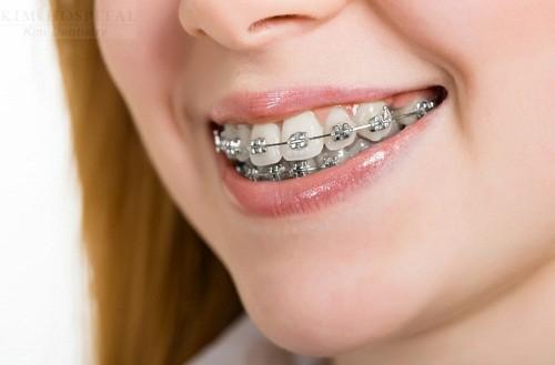 Chia sẻ từ chuyên gia để biết niềng răng có hết hô không 2