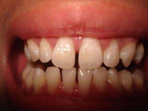 Chi phí cho quá trình niềng răng giá bao nhiêu tiền là hợp lý? 1