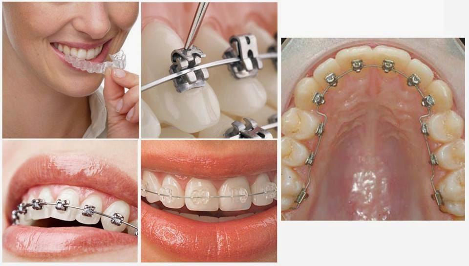 Chi phí cho quá trình niềng răng giá bao nhiêu tiền là hợp lý? 2