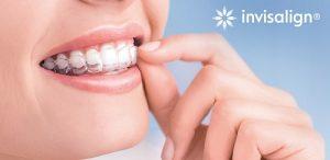 Niềng răng invisalign có đau không?*