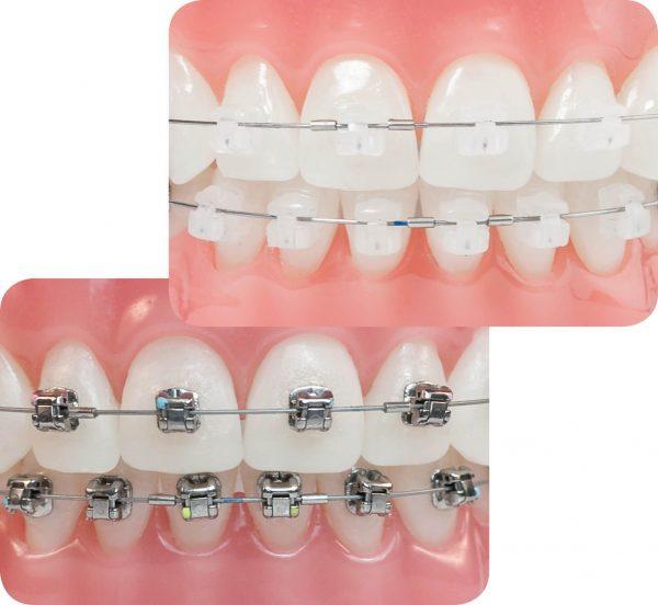 Cập nhật mới về chi phí niềng răng mắc cài tự đóng giá bao nhiêu 2