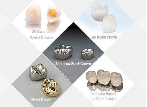 Độ bền của răng sứ thẩm mỹ là bao lâu? 2
