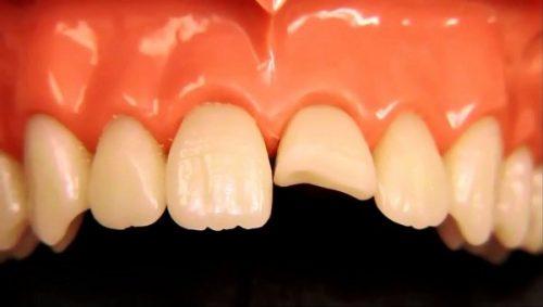 Răng sứ bị mẻ vỡ phải làm sao để xử lý tình trạng này? 1