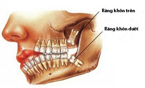 Mọc răng khôn đau trong bau lâu là hết? 1