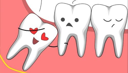 Mọc răng khôn nên ăn gì để đảm bảo? 1