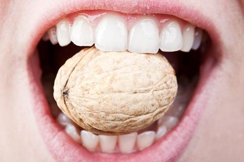 Bọc răng sứ có đau không? Thông tin về bọc răng bạn cần biết 4