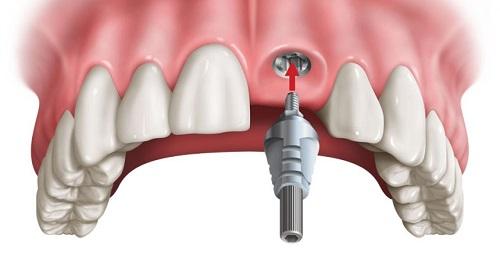 Cắm implant răng cửa như thế nào? 3