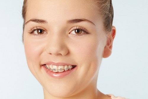 Niềng răng hô giá rẻ giải quyết vấn đề thẩm mỹ cho khách hàng 2