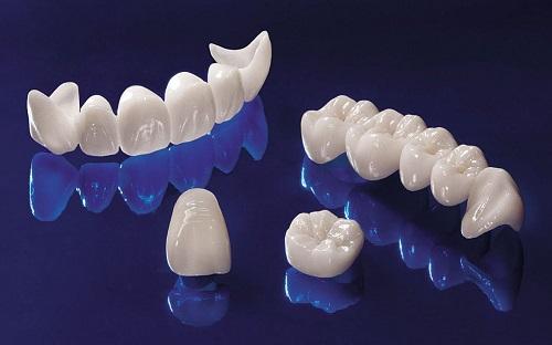 Bọc răng sứ ở đâu tốt nhất Hà Nội? Tiêu chí đánh giá là gì 1