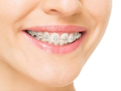 Những điều cần biết khi niềng răng bị lòi chân răng 4