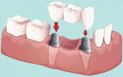 Trồng răng hàm giá bao nhiêu? Cập nhật chi phí mới nhất 2