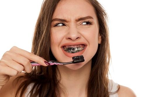Tẩy trắng răng bằng than hoạt tính đơn giản 1