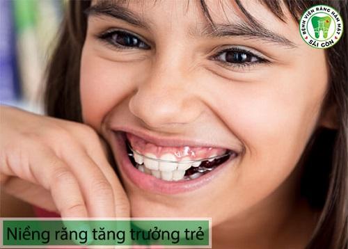 Niềng răng cho trẻ 10 tuổi - Các lưu ý phụ huynh nên biết 3